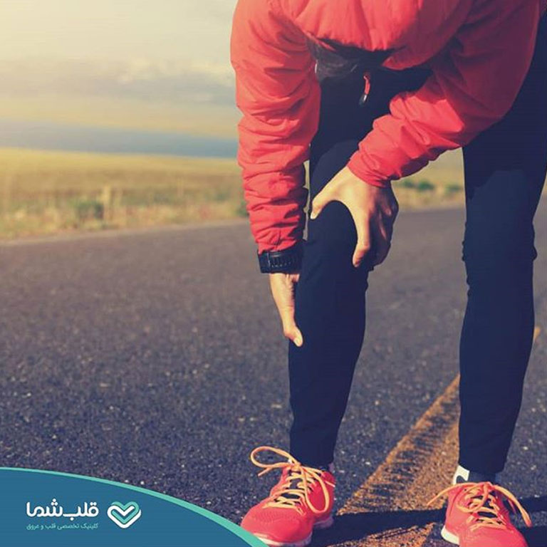 مشکلات عروقی به عنوان درد پا
