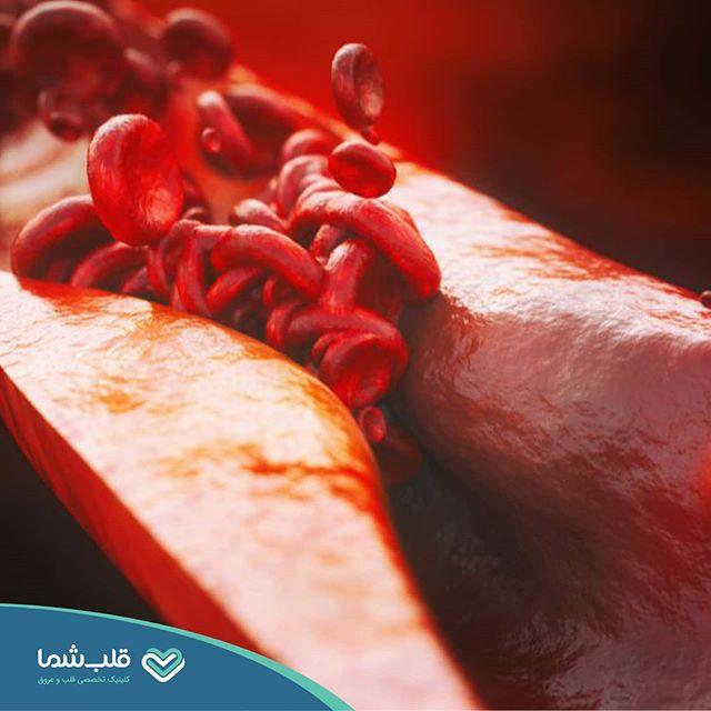 از هر سه فوت، علت یکی بیماریهای قلبی عروقی است